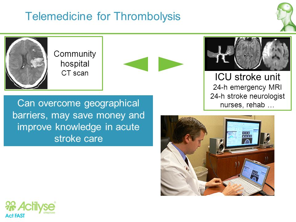 Telemedicine for Thrombolysis