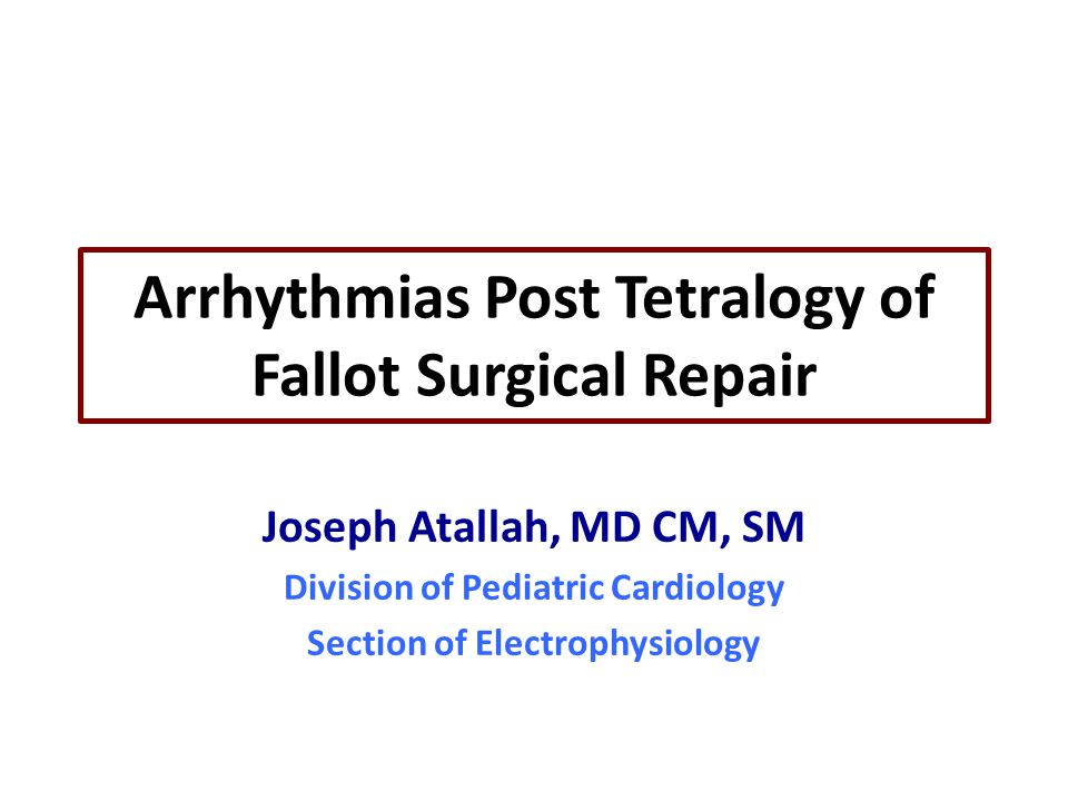 Arrhythmias Post Tetralogy of Fallot Surgical Repair