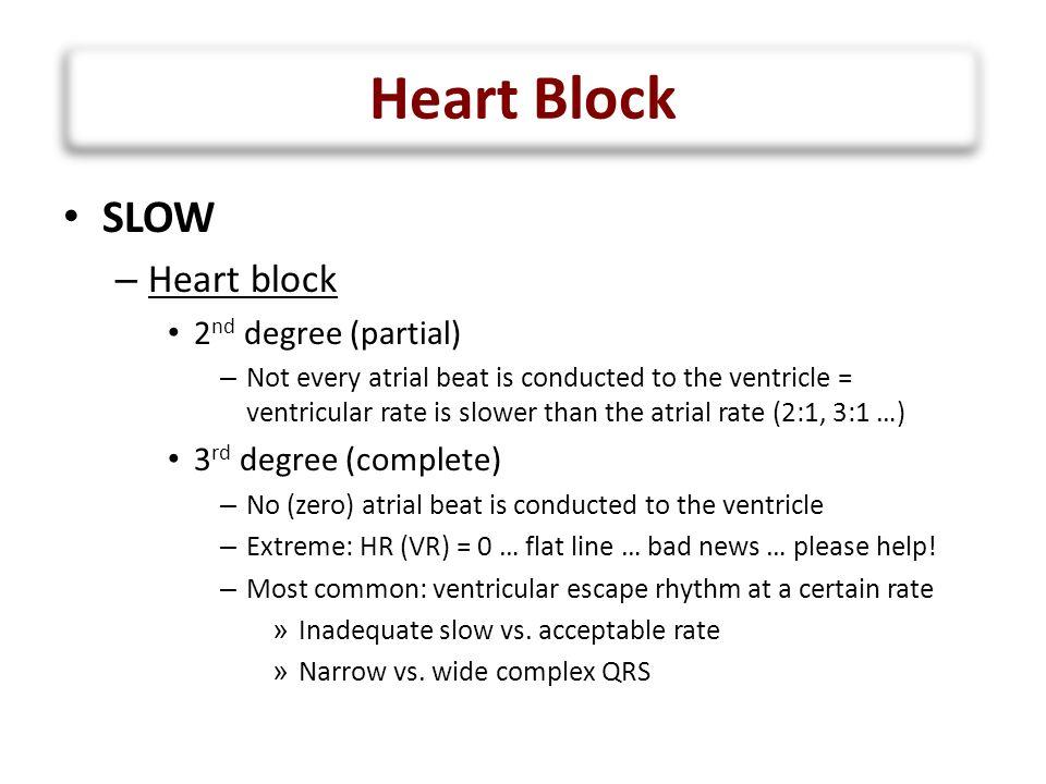 Heart Block SLOW Heart block 2nd degree (partial)