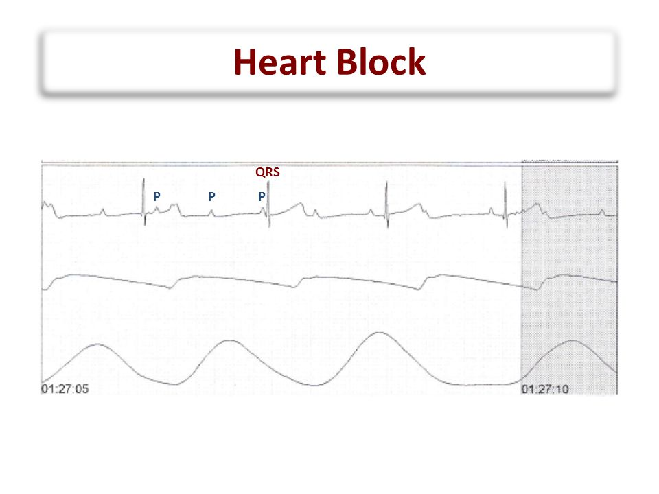 Heart Block QRS P P P
