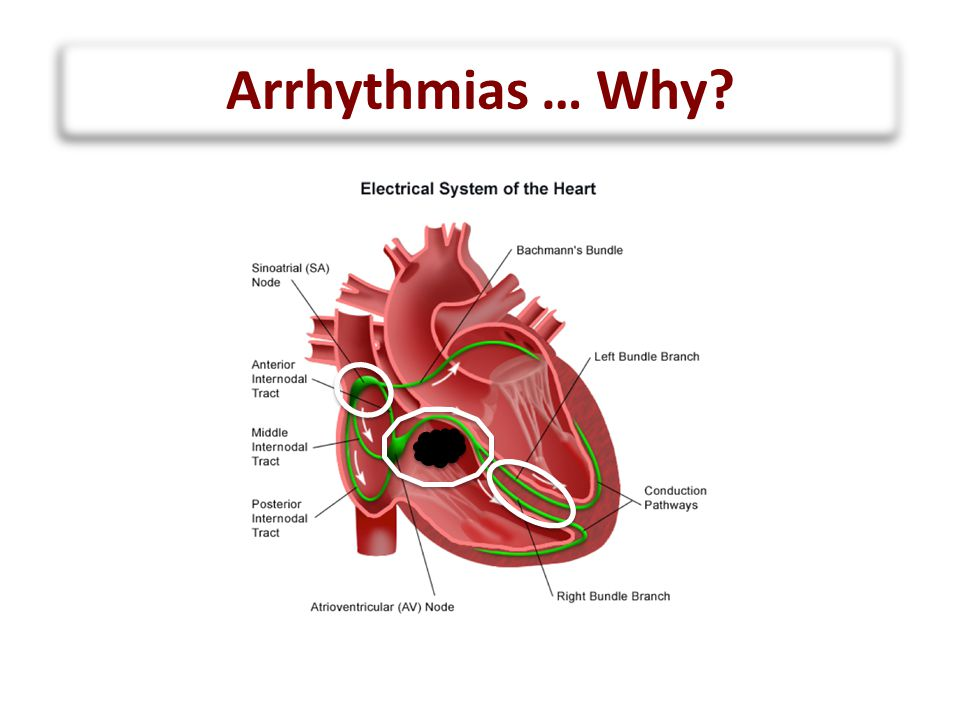 Arrhythmias … Why