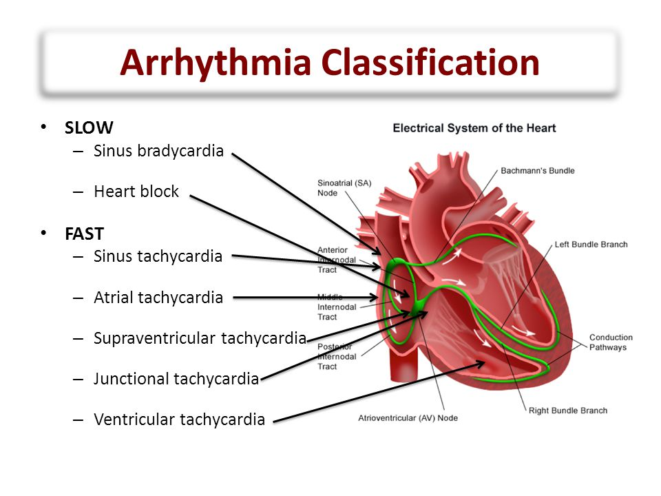 Image result for arrhythmia