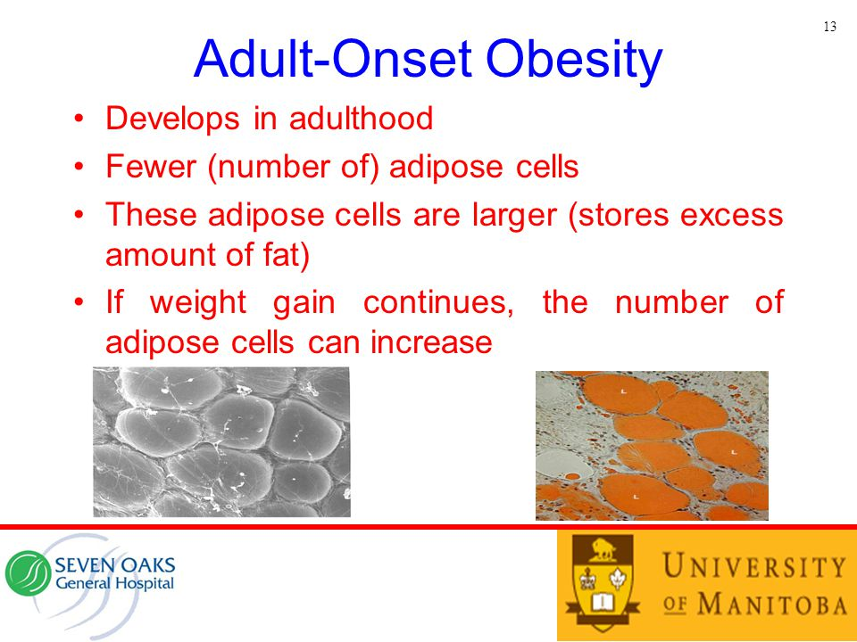 Adult-Onset Obesity Develops in adulthood