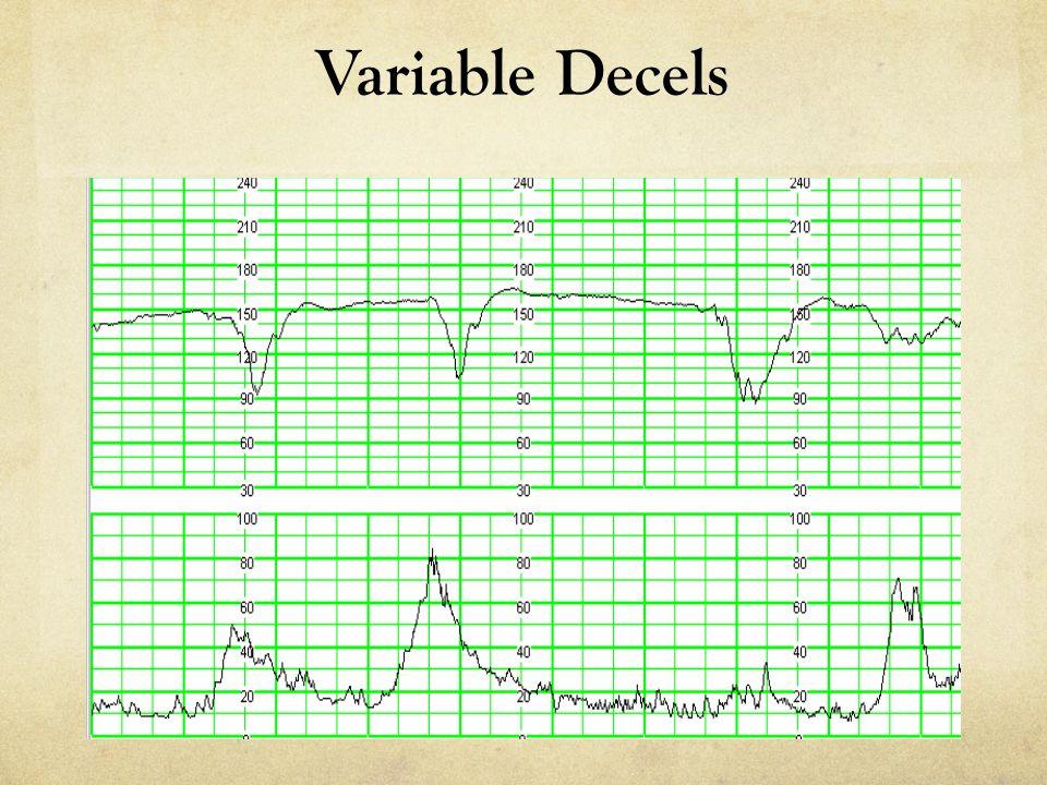 Variable Decels