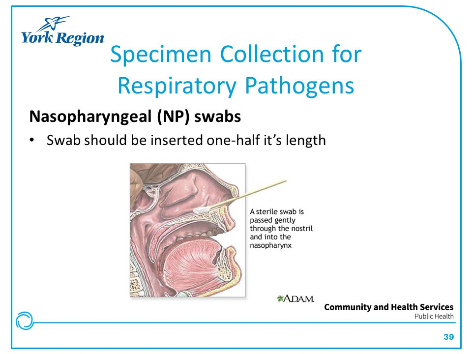 Specimen Collection for Respiratory Pathogens