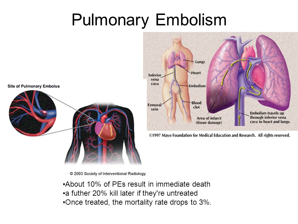 Pulmonary Embolism About 10% of PEs result in immediate death