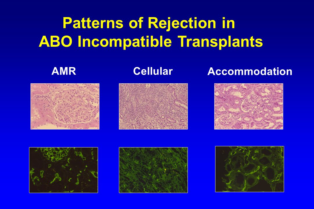Patterns of Rejection in ABO Incompatible Transplants