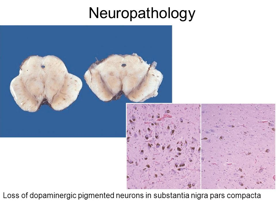 Neuropathology Loss of dopaminergic pigmented neurons in substantia nigra pars compacta