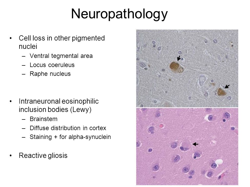 Neuropathology Cell loss in other pigmented nuclei
