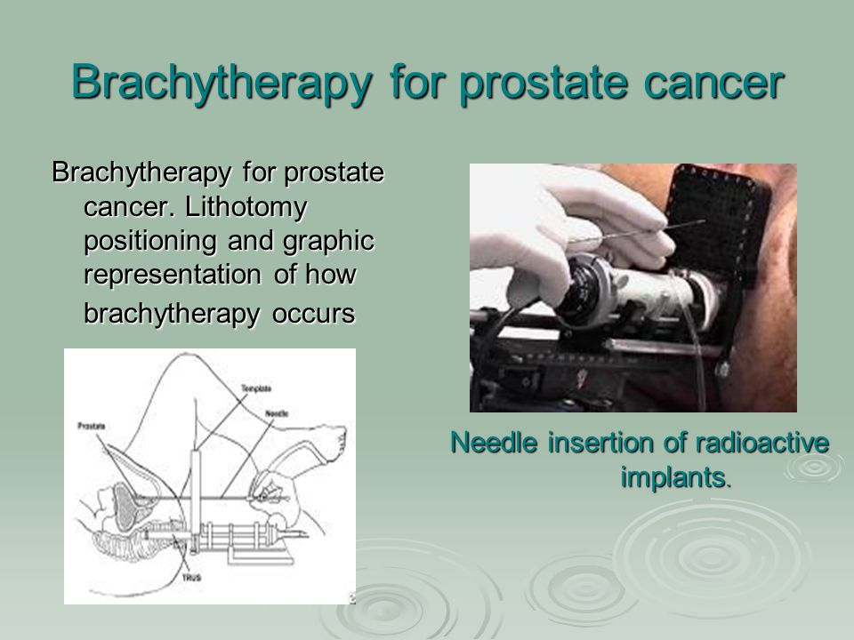 Brachytherapy for prostate cancer