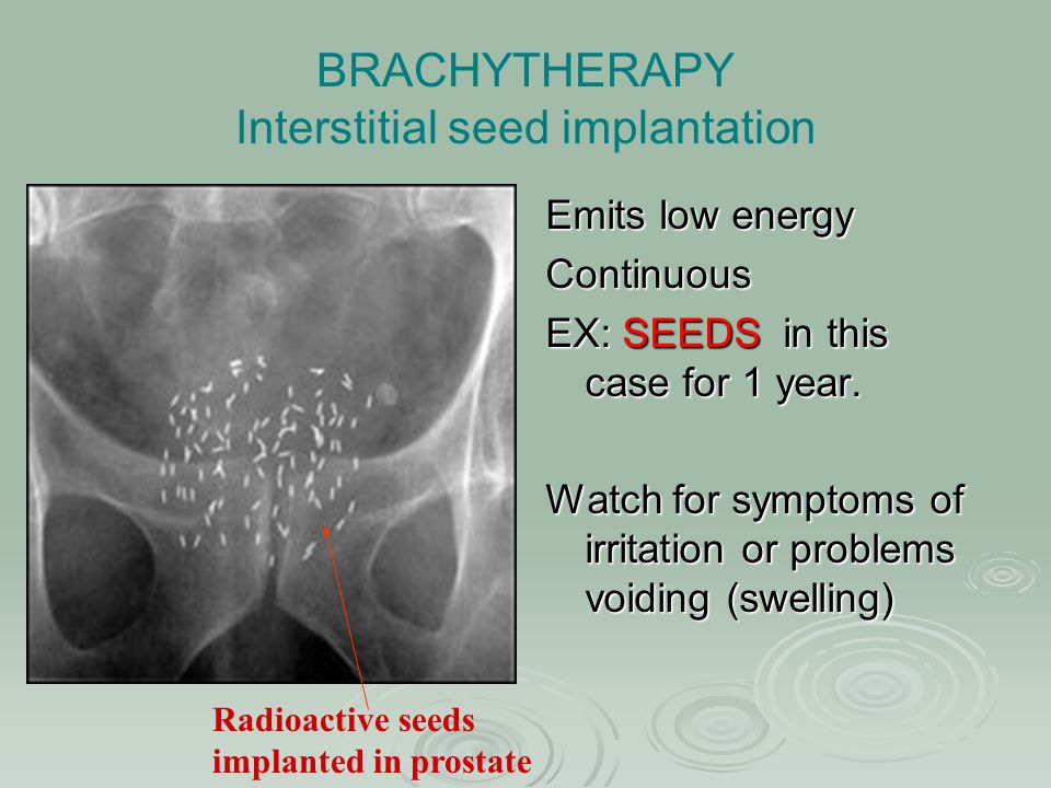 BRACHYTHERAPY Interstitial seed implantation