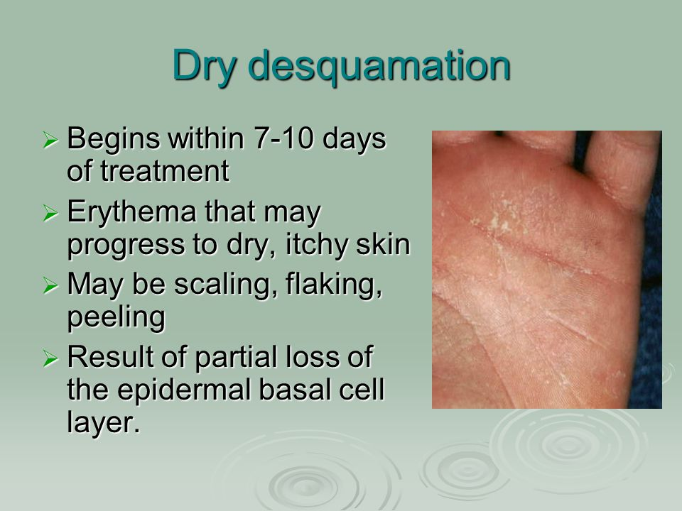 Dry desquamation Begins within 7-10 days of treatment