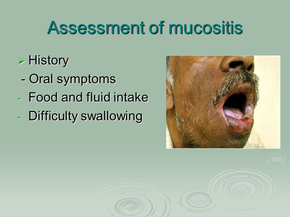 Assessment of mucositis