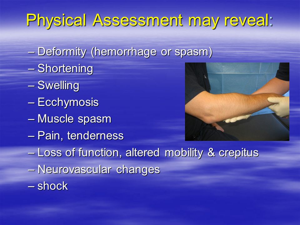 Physical Assessment may reveal: