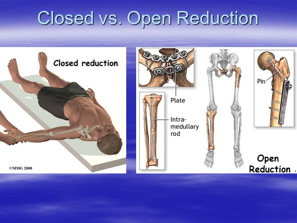 Closed vs. Open Reduction