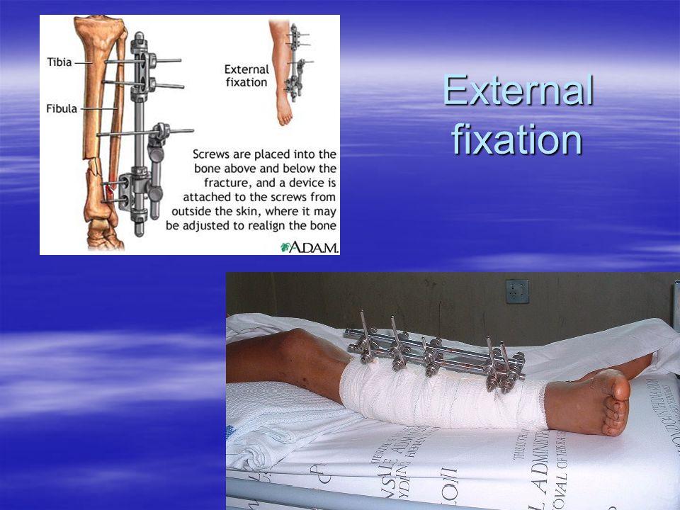 External fixation