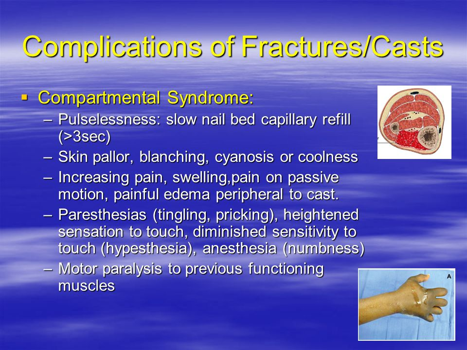 Complications of Fractures/Casts