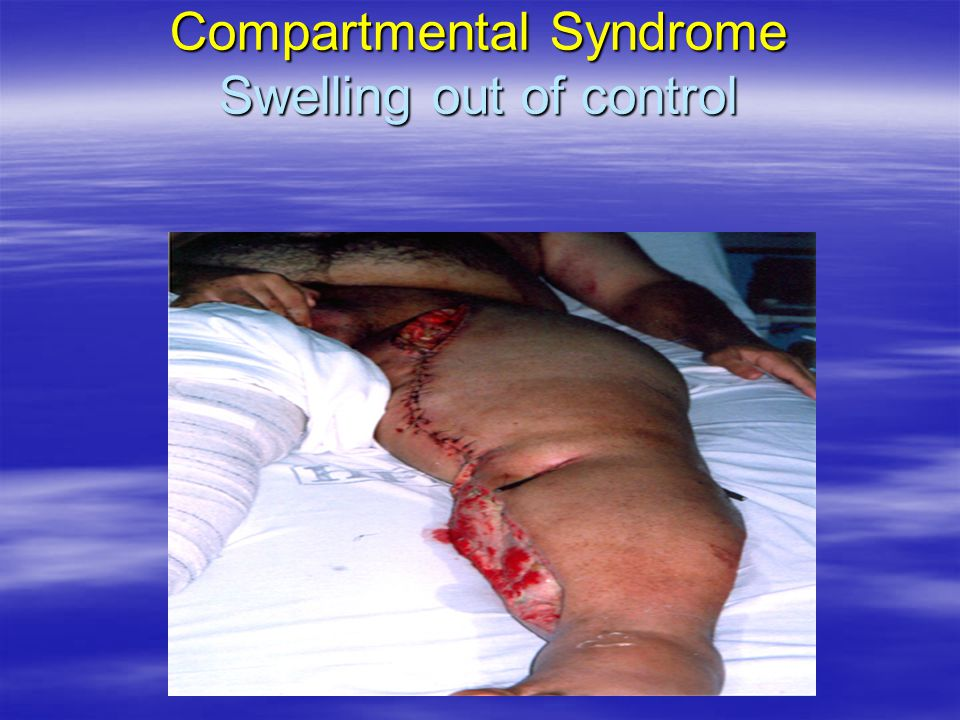 Compartmental Syndrome Swelling out of control
