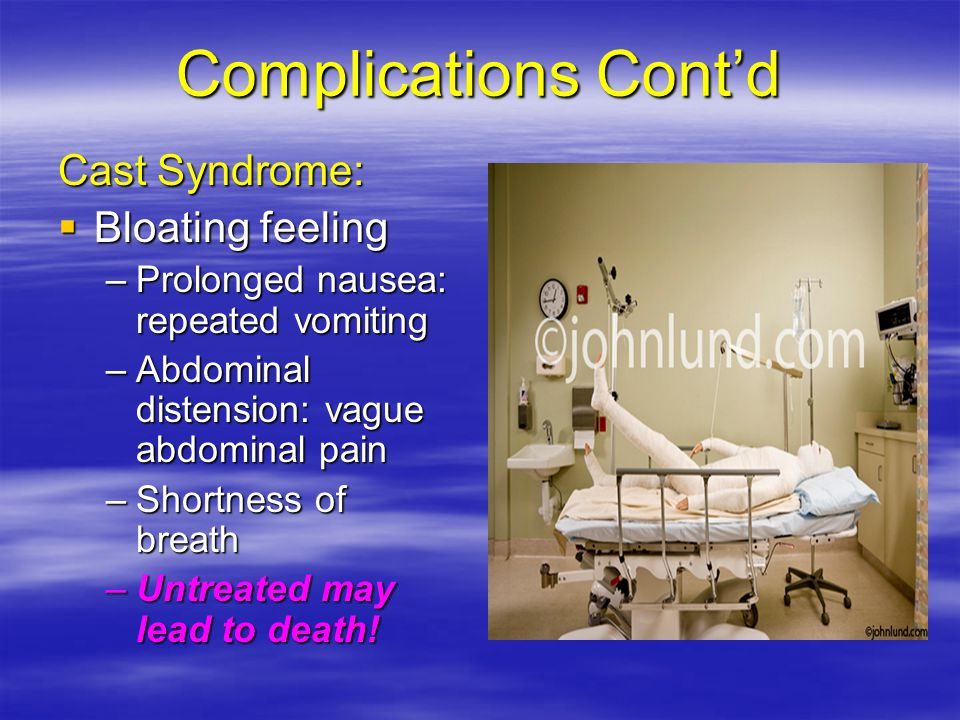Complications Cont'd Cast Syndrome: Bloating feeling