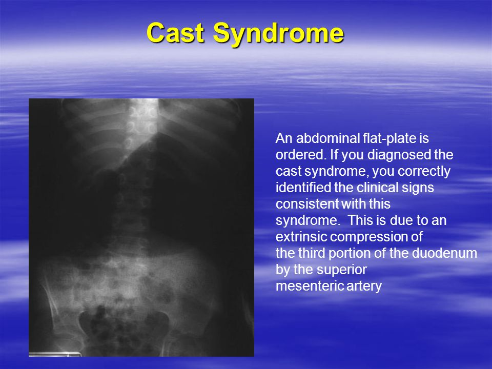 Cast Syndrome