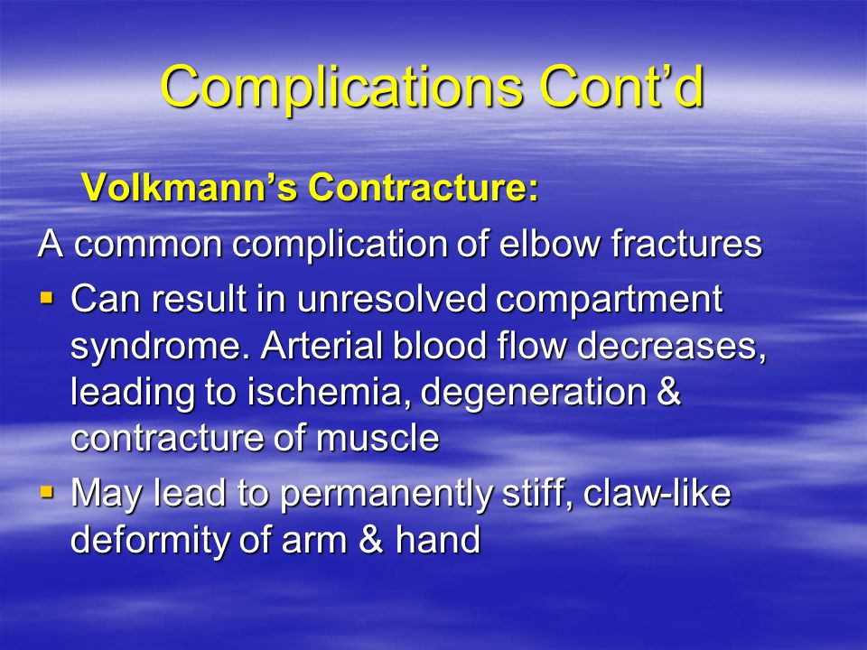 Complications Cont'd Volkmann's Contracture: