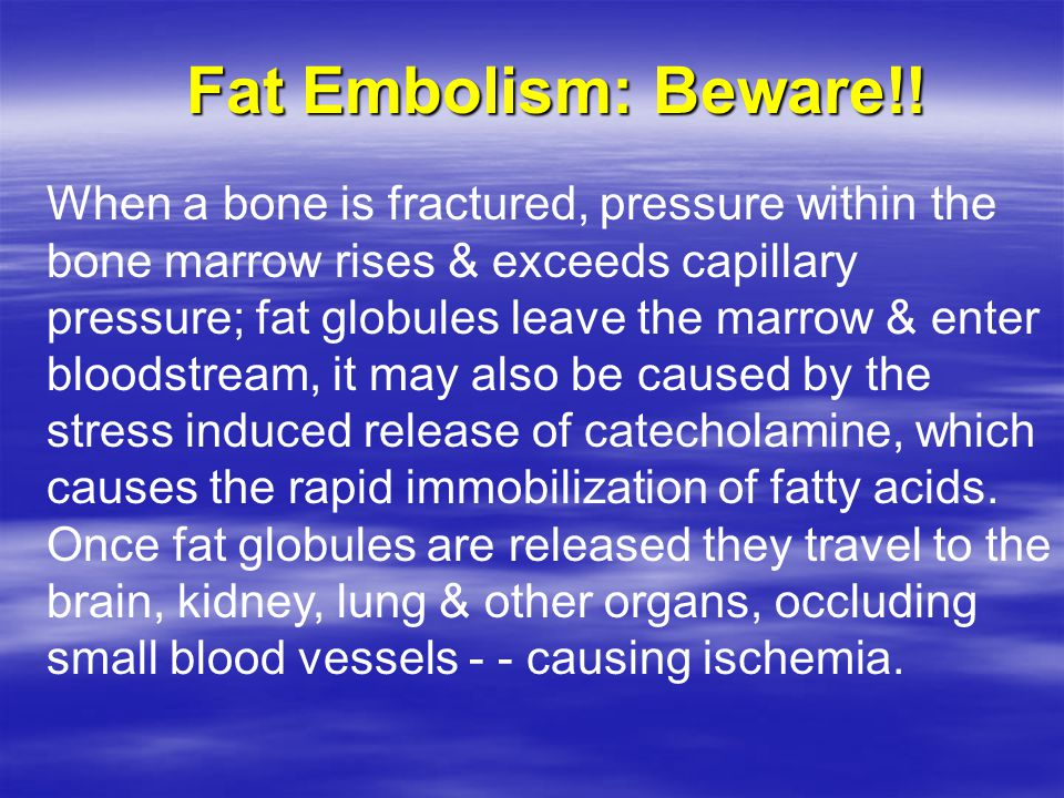 Fat Embolism: Beware!!