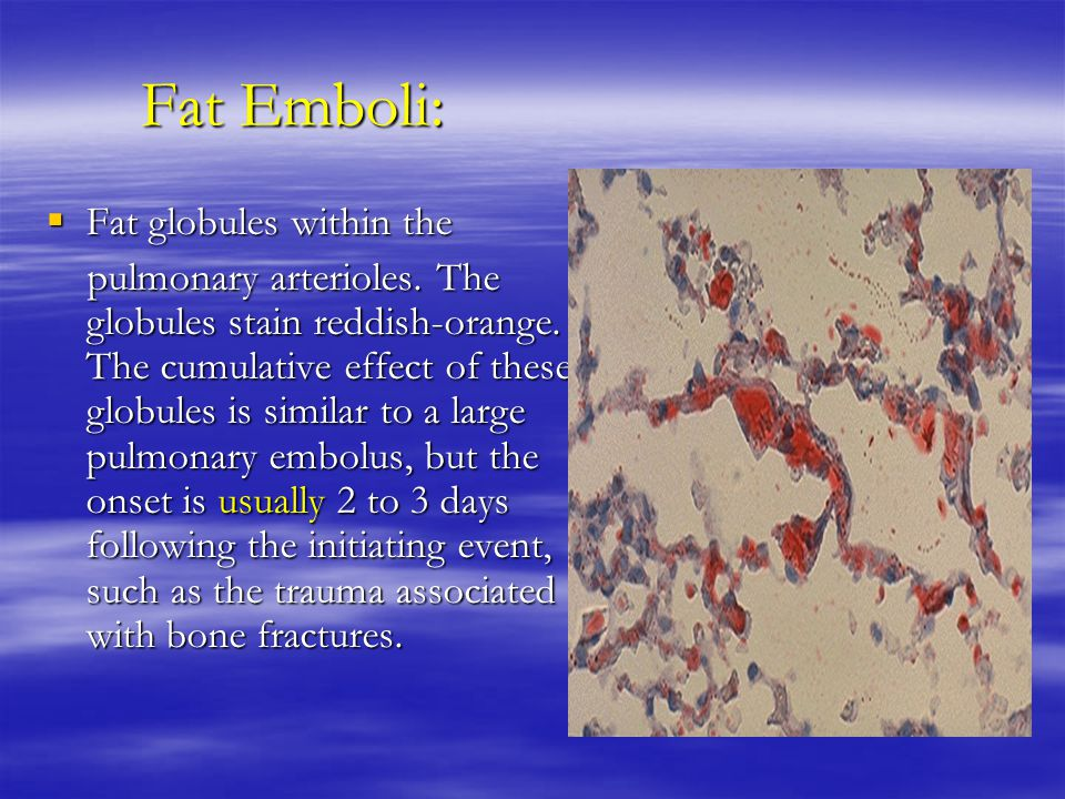 Fat Emboli: Fat globules within the