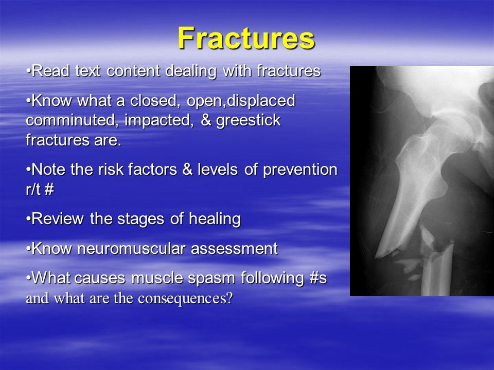 Fractures Read text content dealing with fractures