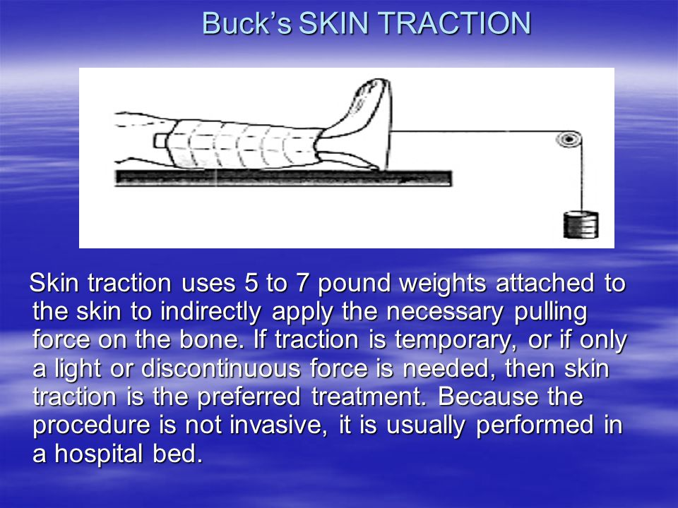 Buck's SKIN TRACTION