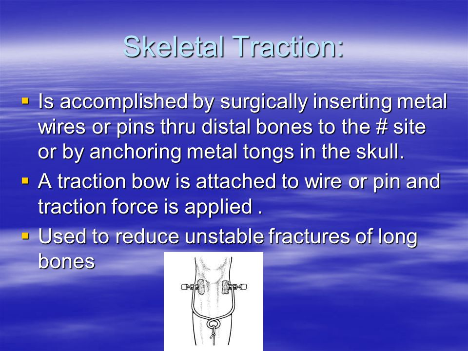 Skeletal Traction: