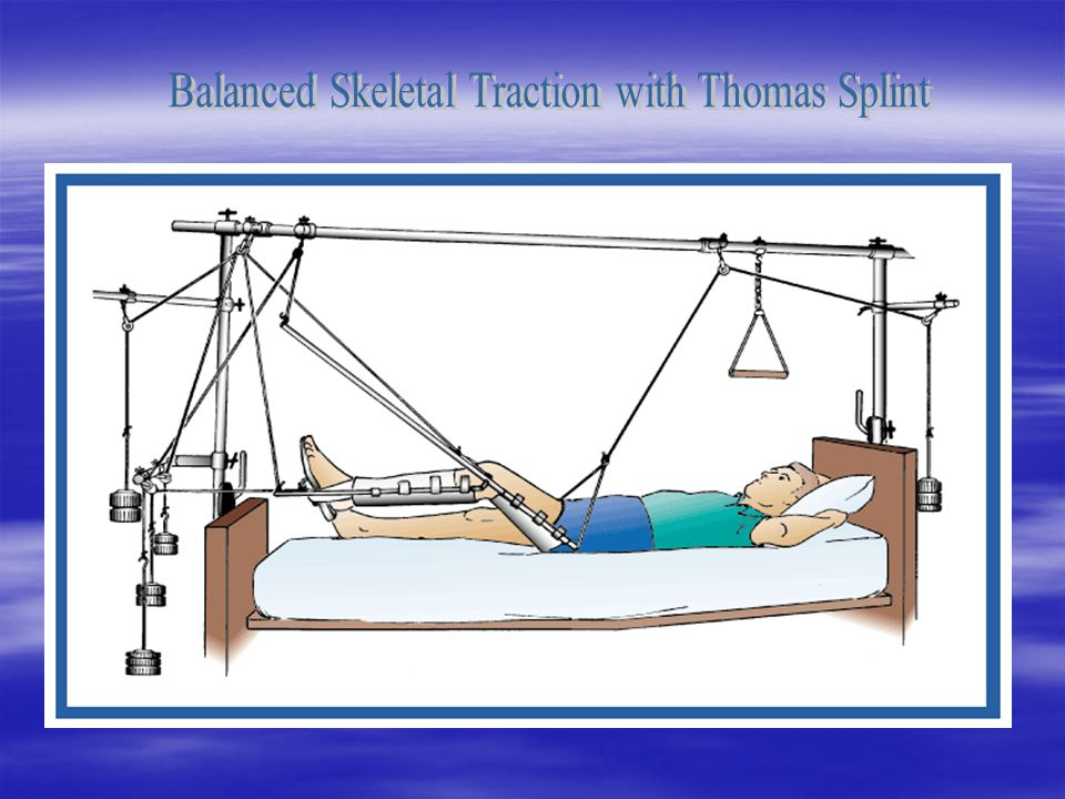 Balanced Skeletal Traction with Thomas Splint