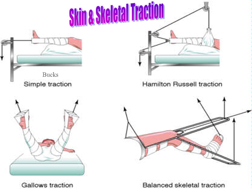 Skin & Skeletal Traction