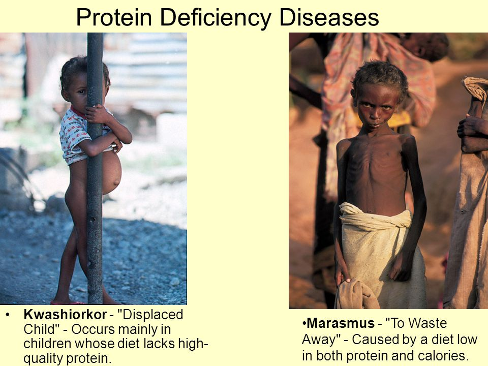 Protein Deficiency Diseases