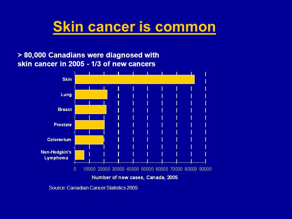 Skin cancer is common > 80,000 Canadians were diagnosed with
