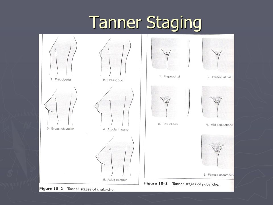 Tanner Staging