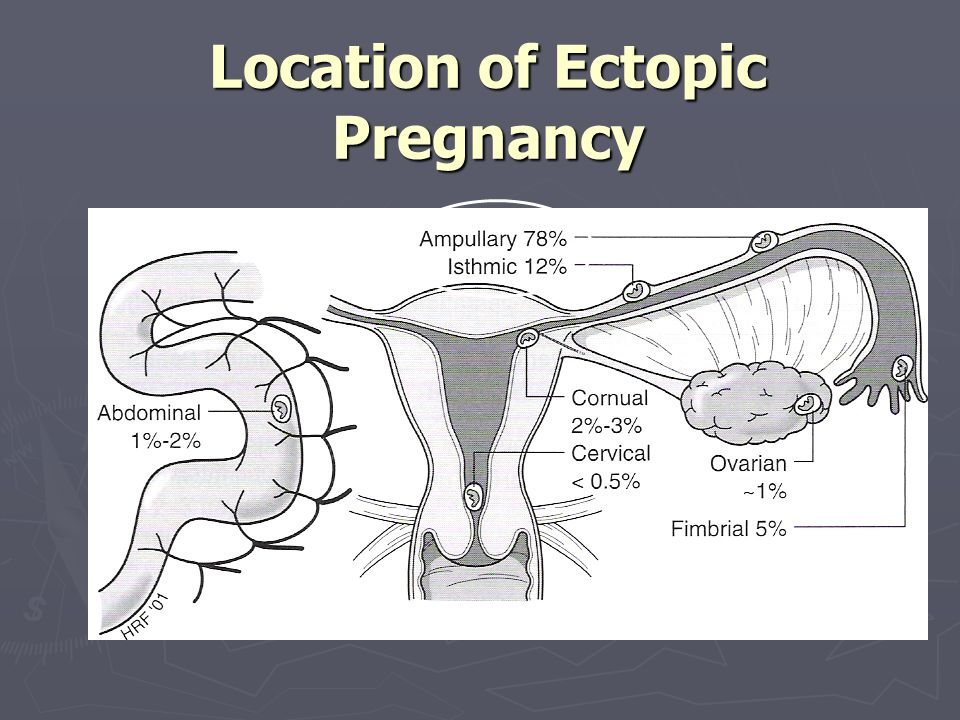 Location of Ectopic Pregnancy