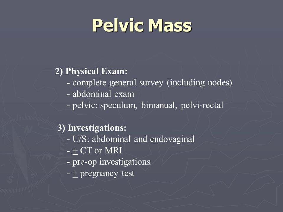 Pelvic Mass 2) Physical Exam: