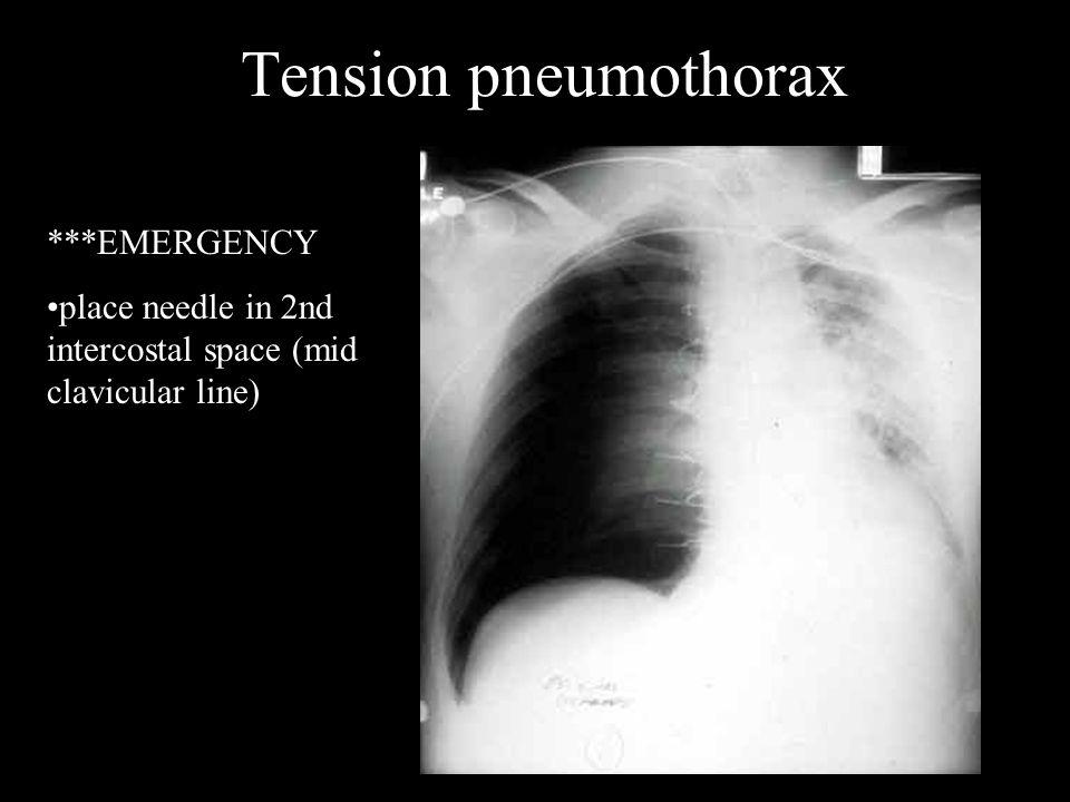 Tension pneumothorax ***EMERGENCY