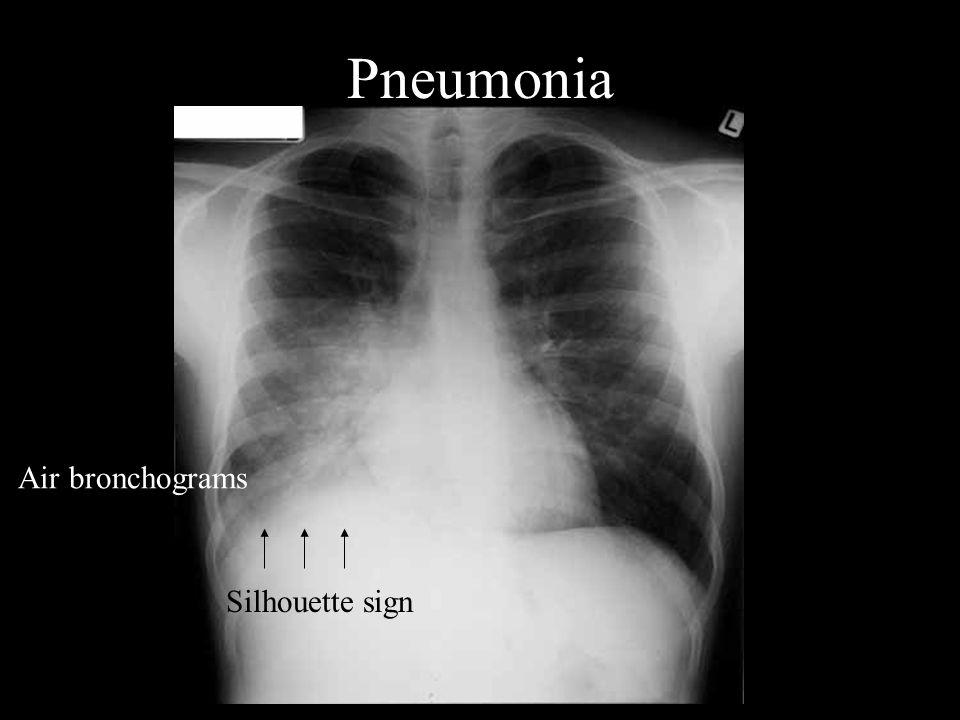 Pneumonia Air bronchograms Silhouette sign