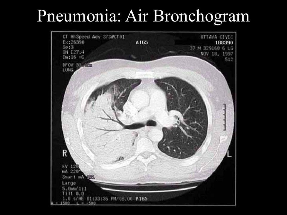 Pneumonia: Air Bronchogram