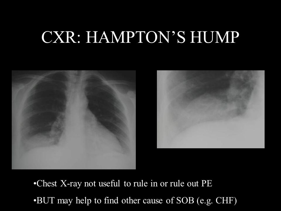CXR: HAMPTON'S HUMP Chest X-ray not useful to rule in or rule out PE