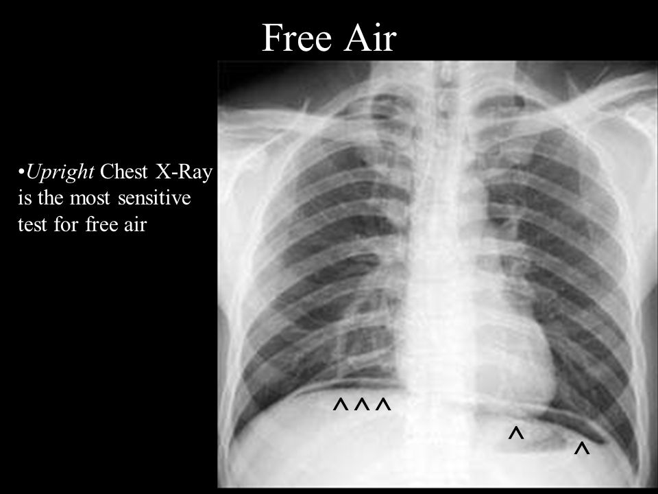 Free Air ^^^ ^ Upright Chest X-Ray is the most sensitive test for free air