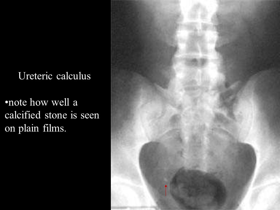 Ureteric calculus note how well a calcified stone is seen on plain films.