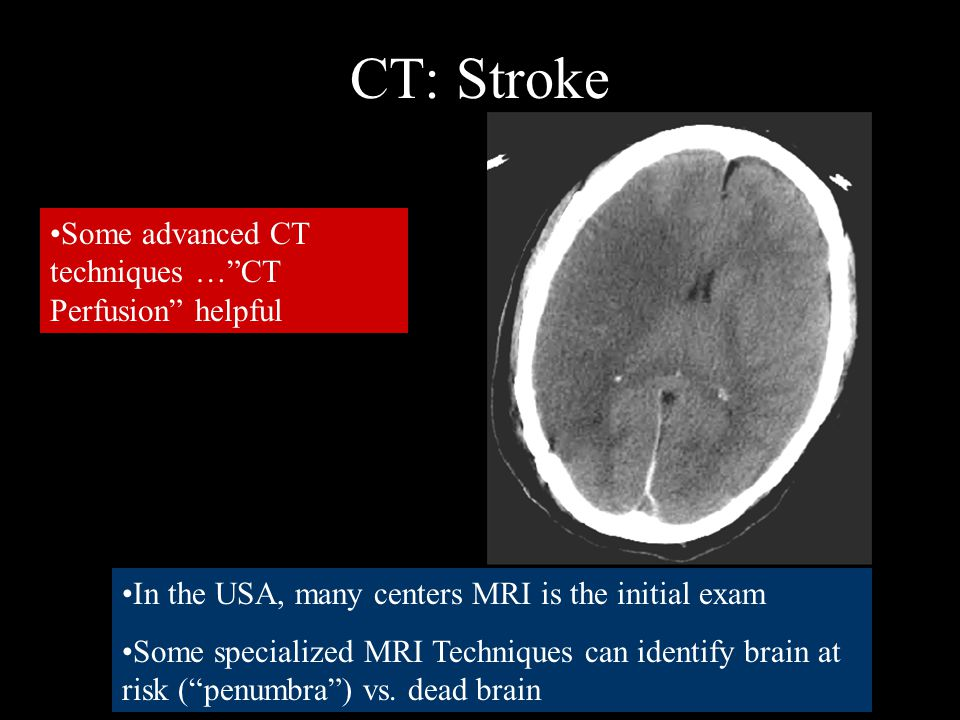 CT: Stroke Some advanced CT techniques … CT Perfusion helpful