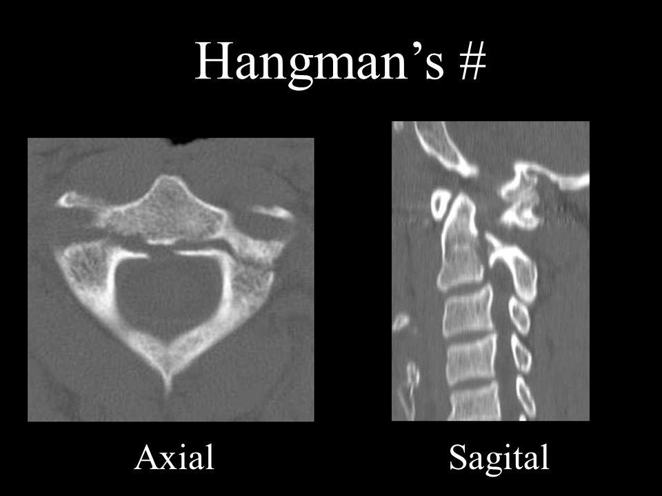 Hangman's # Axial Sagital