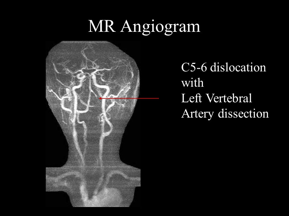 MR Angiogram C5-6 dislocation with Left Vertebral Artery dissection