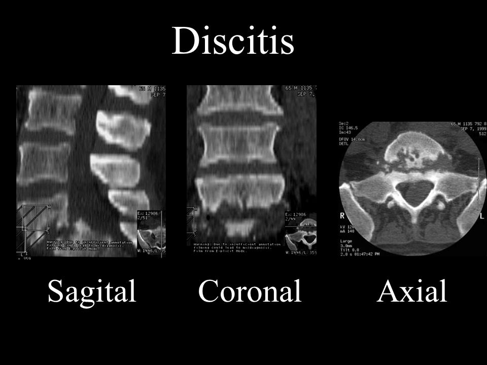 Discitis Discitis, Sagital Coronal Axial