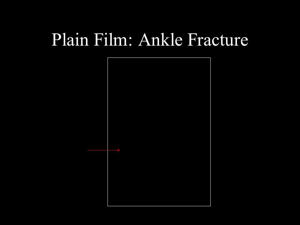 Plain Film: Ankle Fracture