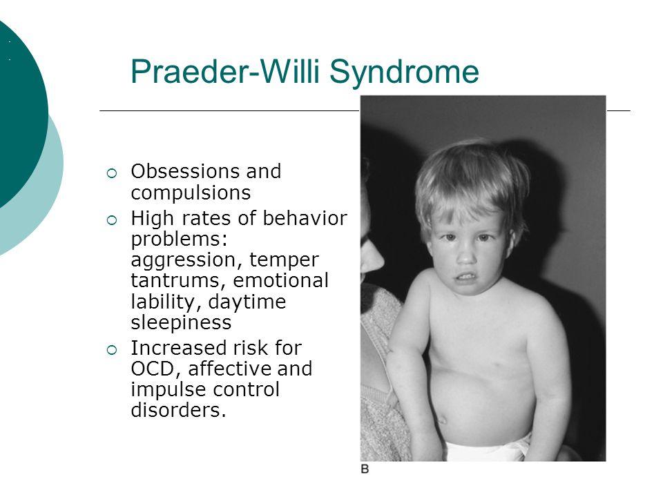 Praeder-Willi Syndrome