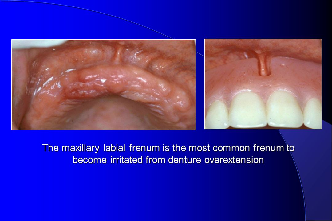 The maxillary labial frenum is the most common frenum to become irritated from denture overextension